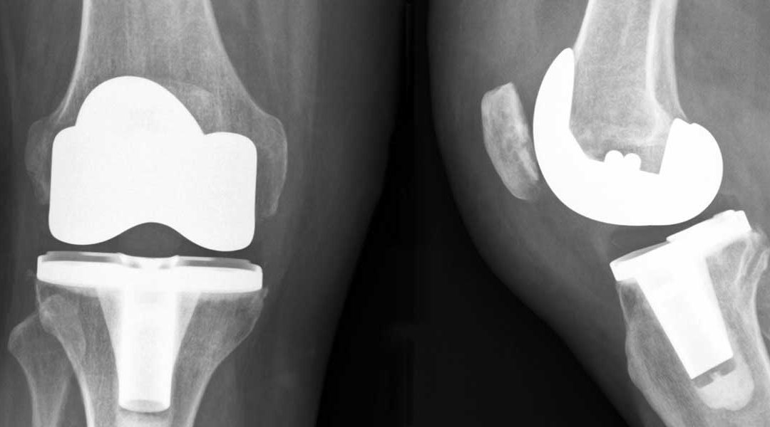 Why Wait For A Total Knee Replacement